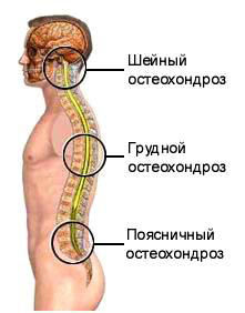 остеохондроз - лечение в Москве