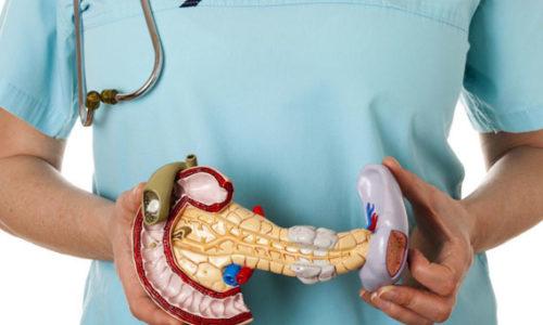 Obostrenie-hronicheskogo-pankreatita-diagnostika-lechenie-profilaktika