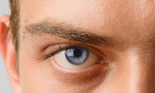 glaukoma-u-bolnogo