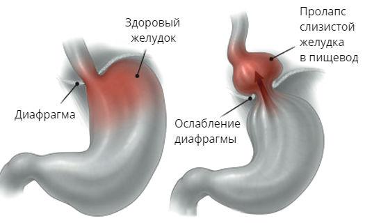 пролапс желудка