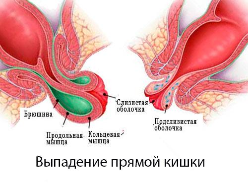Пролапс. Выпадение прямой кишки