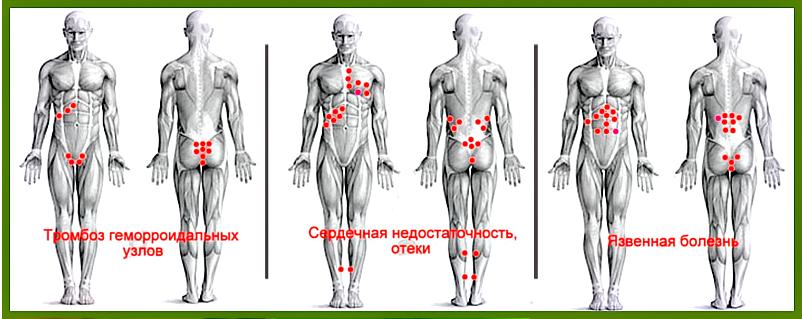 лечение медицинскими пиявками в москве